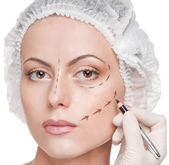 Correction lines on woman face, before surgery operetion — Stock Photo