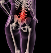 Overweight female skeleton with back pain — Stock Photo