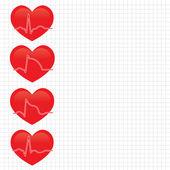 Estágio de infarto do miocárdio — Vetorial Stock