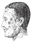 Human face infected with impetigo vintage engraving — Stock Vector