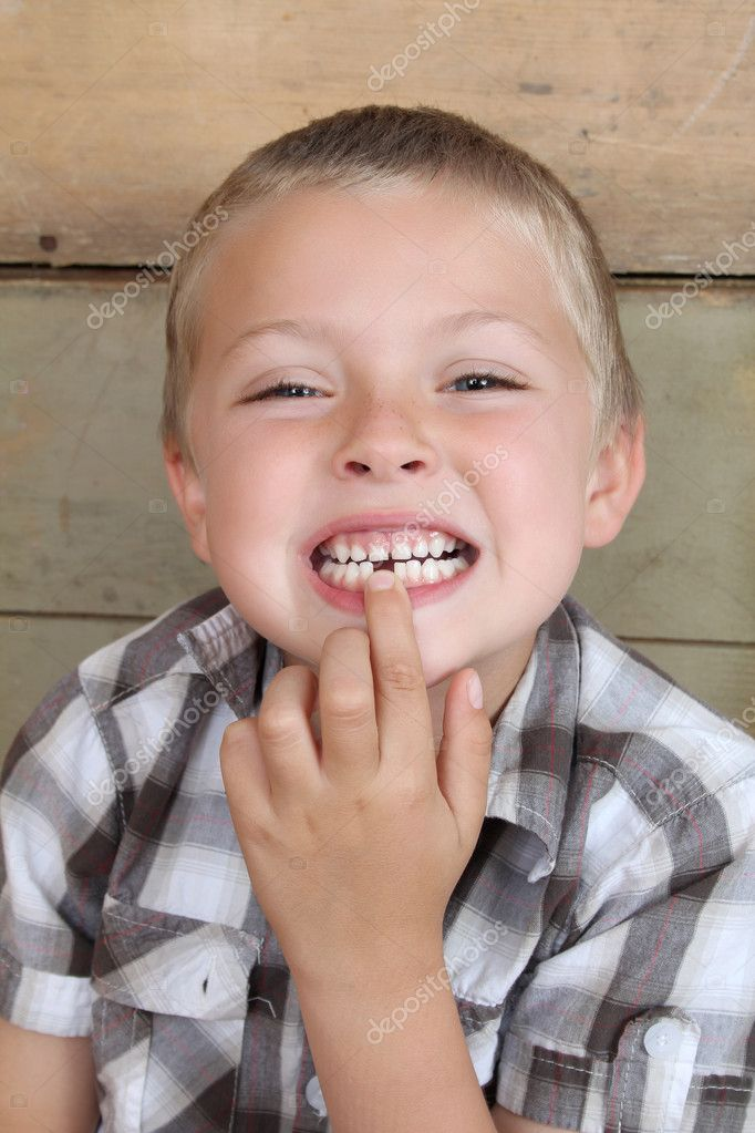 Cute blond boy showing his missing tooth — Stock Photo #8448574