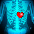 Human X Ray showing Heart - Stock Vector