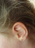 Ear of the child with an ear ring in ears — Stock Photo
