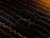 Wave oscillations, brain waves on encephalogramme, eeg — Stock Photo