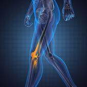 человека рентгенография сканирования — Стоковое фото