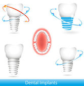 Dental implants — Stock Vector
