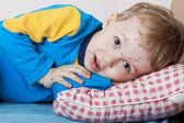 Boy suffers chickenpox — Stock Photo