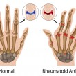 Rheumatoid arthritis of hand — Stock Vector