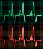 Vector electrocardiograms of the human heart — Stock Vector