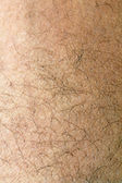 Human skin with strands of hair close up — Stock Photo