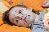 The girl suffers chickenpox — Stock Photo