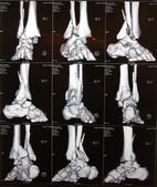 Right ankle CT — Stock Photo