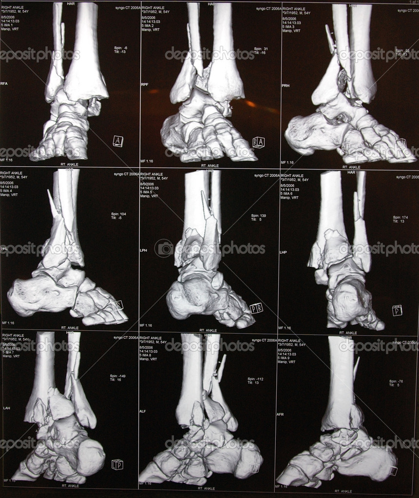 Image of right ankle CT  Stock Photo #8000651