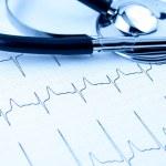 Cardiogram with stethoscope — Stock Photo