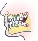 Impacted wisdom tooth — Stock vektor
