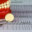 Stock Photo: Dental tools and equipment on dental chart
