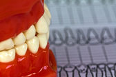 Dental tools and equipment on dental chart — Stock Photo