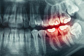 Dental xray — Stock Photo