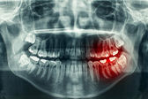 Panoramic dental xray — Stock Photo