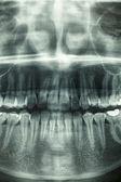 Dental xray, horror skull — Stock Photo