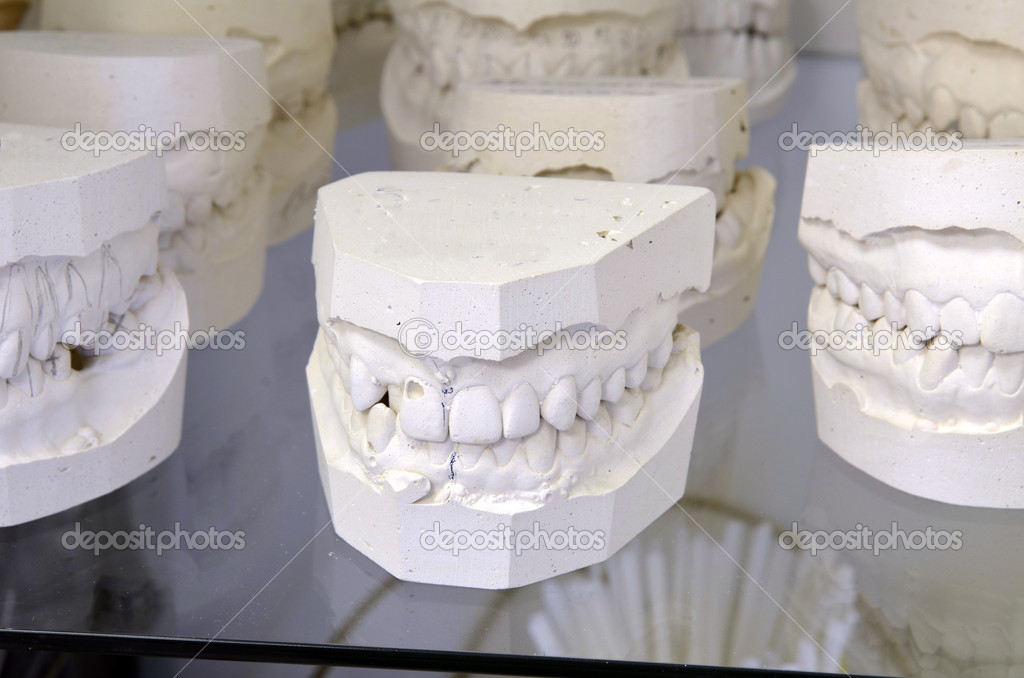 Dental models — Stock Photo #10088697