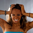 Vitiligo Skin Condition - Foto Stock