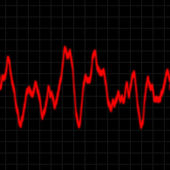 Heart Rate Monitor — Stock Photo