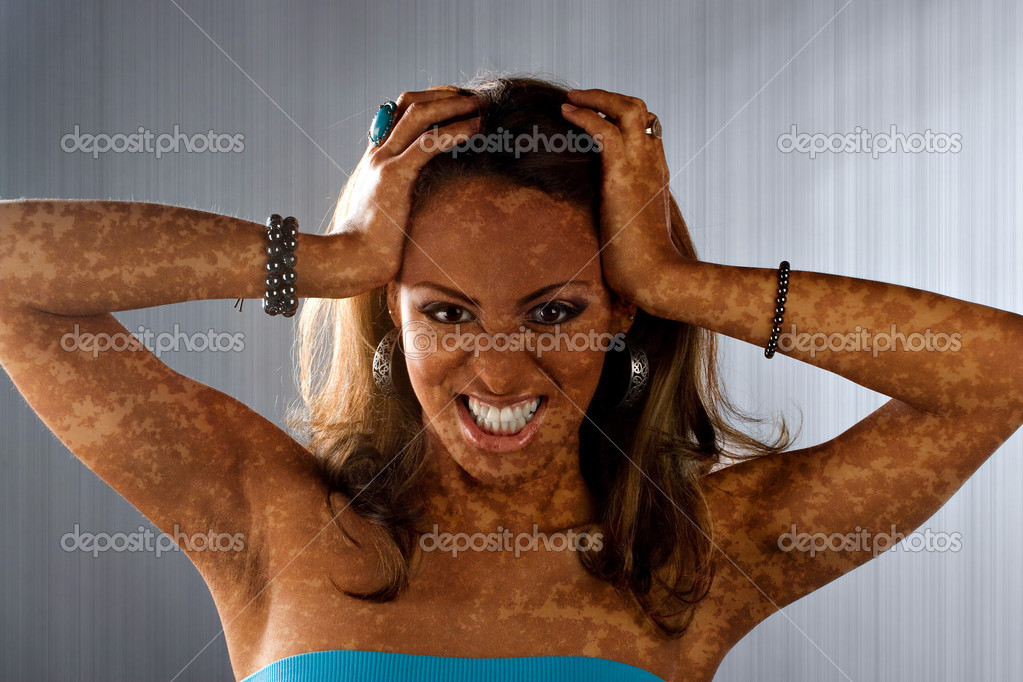 A woman posing with a medical skin condition that looks like vitiligo or leucoderma.  Stock Photo #8944230