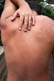 Peeling Sunburned Back — Stock Photo