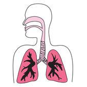 Human Respiratory System Diagram — Stock Vector