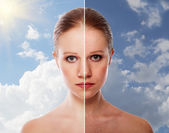 Effect of healing of skin, beauty young woman before and after t — Stock Photo