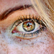 Sun Damaged Skin eye freckles hdr — Stock Photo