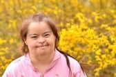 Down syndrome woman — Stock Photo