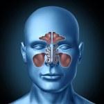 Постер, плакат: Sinus human nasal cavity with human head