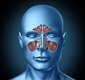Sinus human nasal cavity with human head — Stock Photo