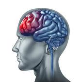Brain head ache migrain — Stock Photo
