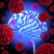 Stock Photo: Brain Cancer