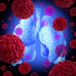 Stock Photo: Lung Cancer