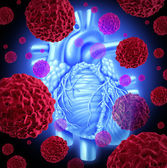 Human Heart Cancer — Stock Photo