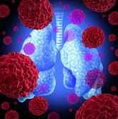 肺癌 — 图库照片