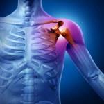 Human Shoulder Pain — Stock Photo