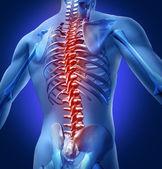 человек-обратно-боль — Стоковое фото