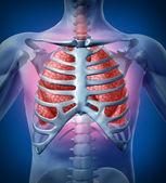人类肺部感染 — 图库照片
