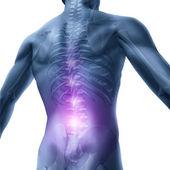 проблемы со спиной — Стоковое фото