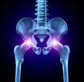 Douleur à la hanche — Photo