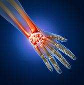 Ból ręki — Zdjęcie stockowe