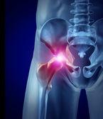 Hip Pain — Stock Photo
