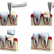 Dental crown installation process, isolated on white — Stock Photo #10486220