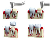 Dental crown installation process, isolated on white — Stock Photo