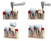 牙科皇冠安装过程中,在白色隔离 — 图库照片